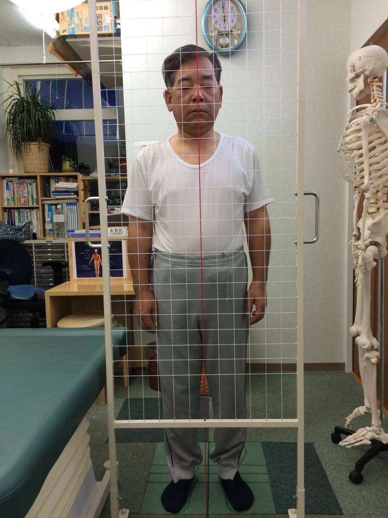 慢性腰痛 整体 東大阪男性