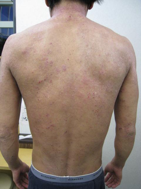アトピー性皮膚炎 リンパマッサージ ビフォー2