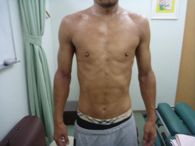 アトピー性皮膚炎 リンパマッサージ アフター1
