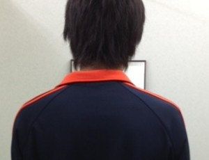 側わん症 ビフォー【大阪 整体エール】