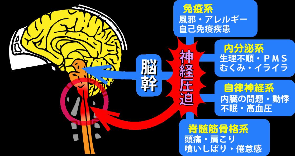 脳幹圧迫による症状 大阪堺市YELL(図)