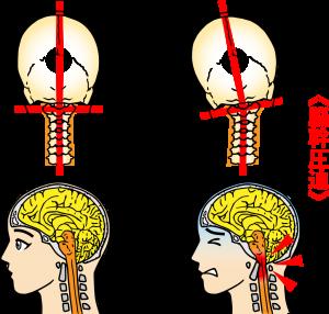 脳幹と自己治癒力【整体院エール】
