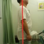 慢性腰痛 整体 アフター