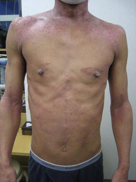 アトピー性皮膚炎 リンパマッサージ ビフォー