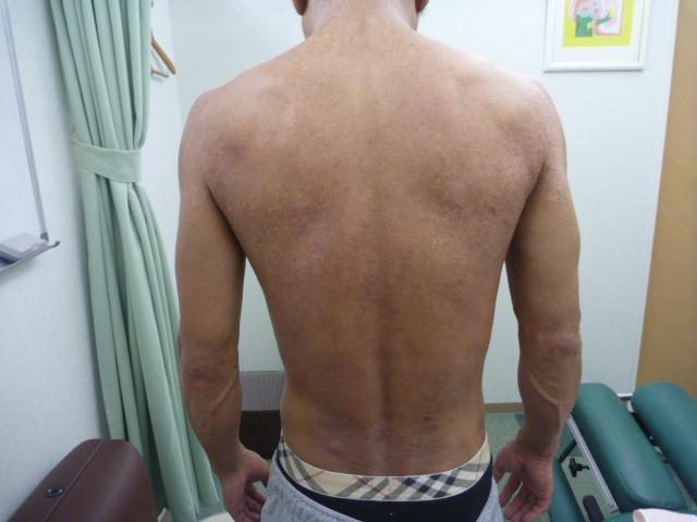 アトピー性皮膚炎 リンパマッサージ アフター2