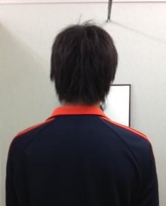 側わん症 アフター【大阪 整体エール】